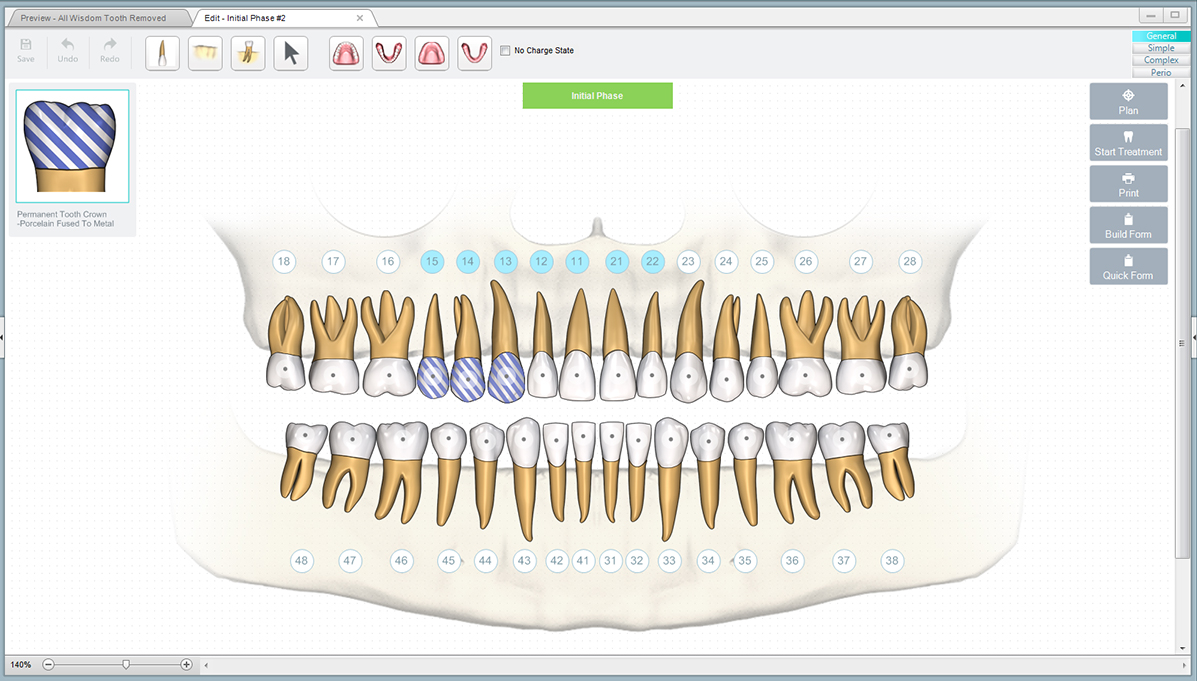 Dental treatment software dental crowns pronofoot35fo Gallery